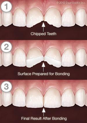 Tooth Bonding Clarksville TN