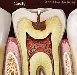 Cavities & Fillings in Dickson & Clarksville