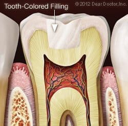 Tooth Colored Fillings in Dickson & Clarksville