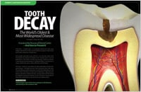 Preventable Tooth Decay